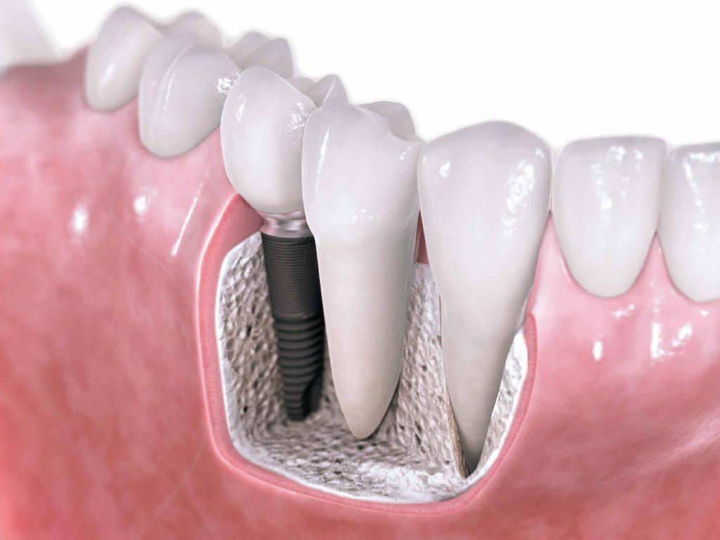 Implant dentaire : est-ce remboursable ?